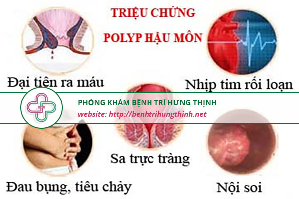 triệu chứng polyp hậu môn