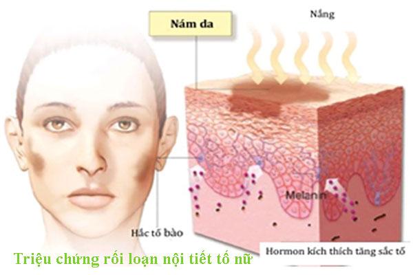 Triệu chứng rối loạn nội tiết tố nữ