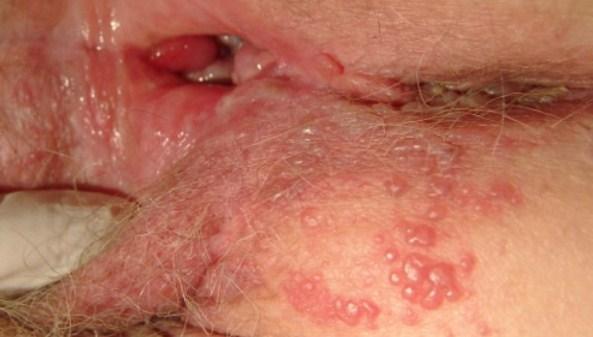 Dấu hiệu bệnh mụn rộp sinh dục